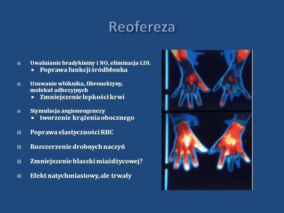 Reofereza Poprawa funkcji śródbłonka Zmniejszenie lepkości krwi
