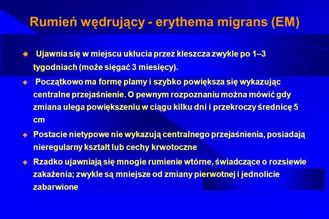 Rumień wędrujący - erythema migrans (EM)