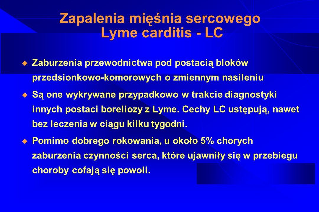 Zapalenia mięśnia sercowego Lyme carditis - LC