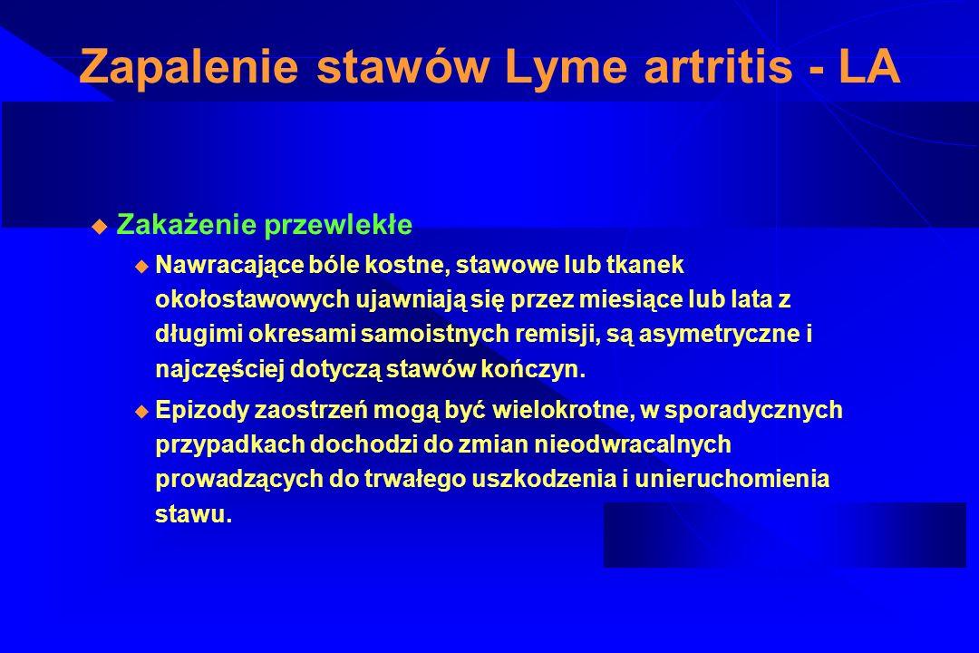 Zapalenie stawów Lyme artritis - LA
