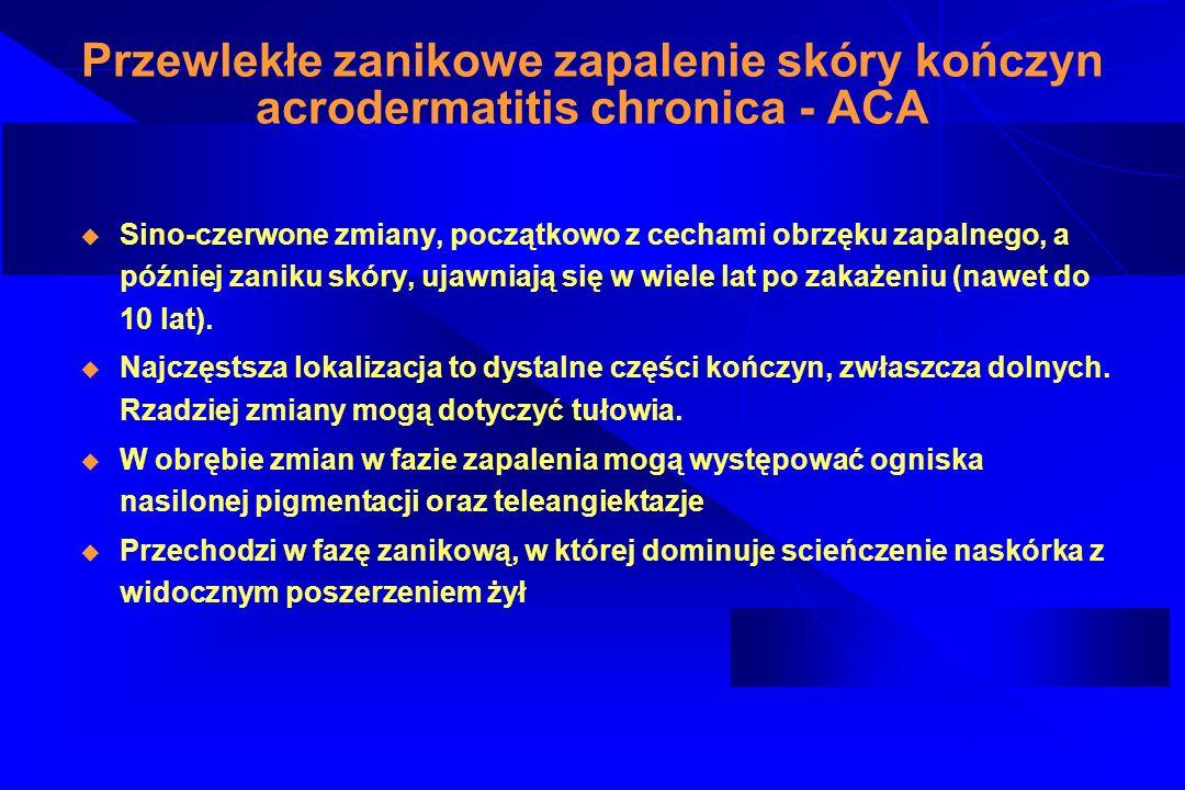 Przewlekłe zanikowe zapalenie skóry kończyn acrodermatitis chronica - ACA