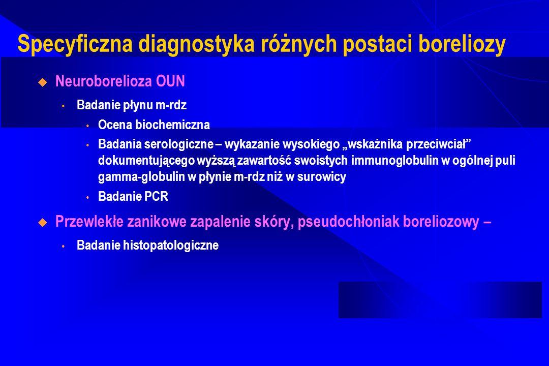 Specyficzna diagnostyka różnych postaci boreliozy