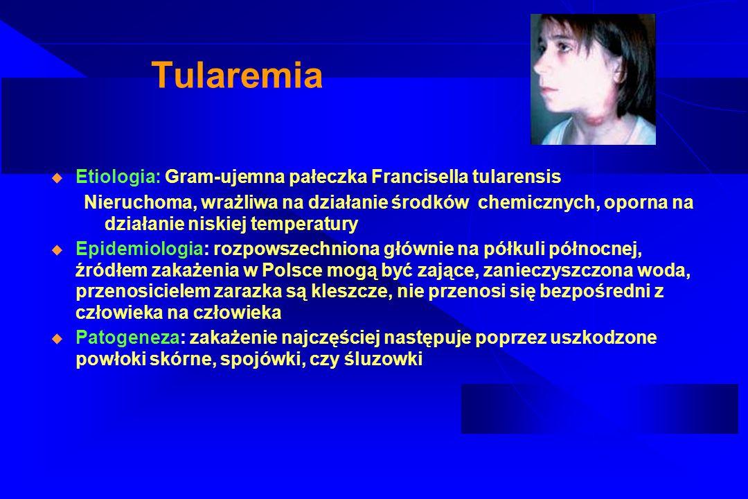 Tularemia Etiologia: Gram-ujemna pałeczka Francisella tularensis