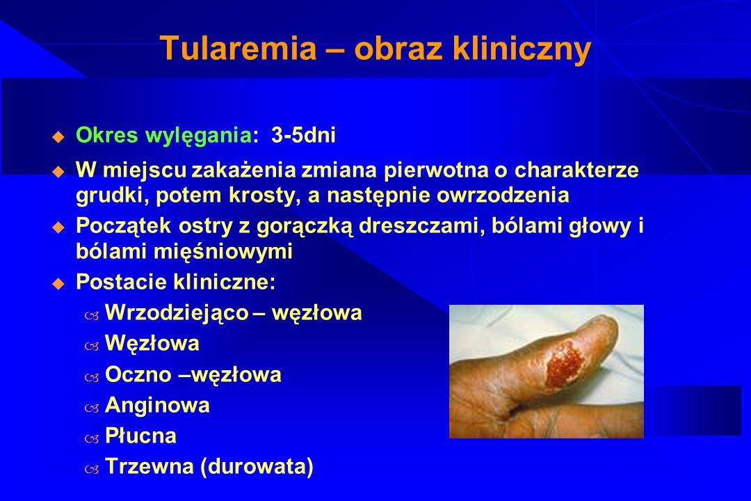 Tularemia – obraz kliniczny