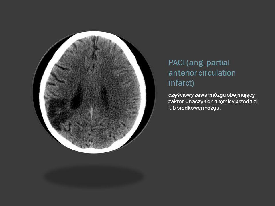 PACI (ang. partial anterior circulation infarct)