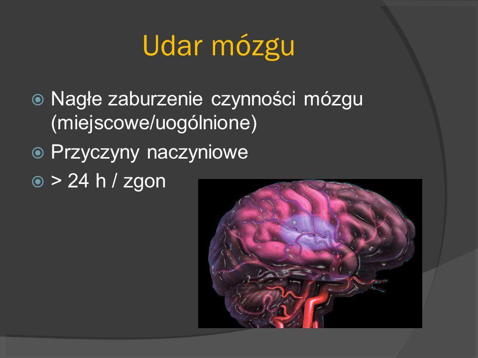 Udar mózgu Nagłe zaburzenie czynności mózgu (miejscowe/uogólnione)