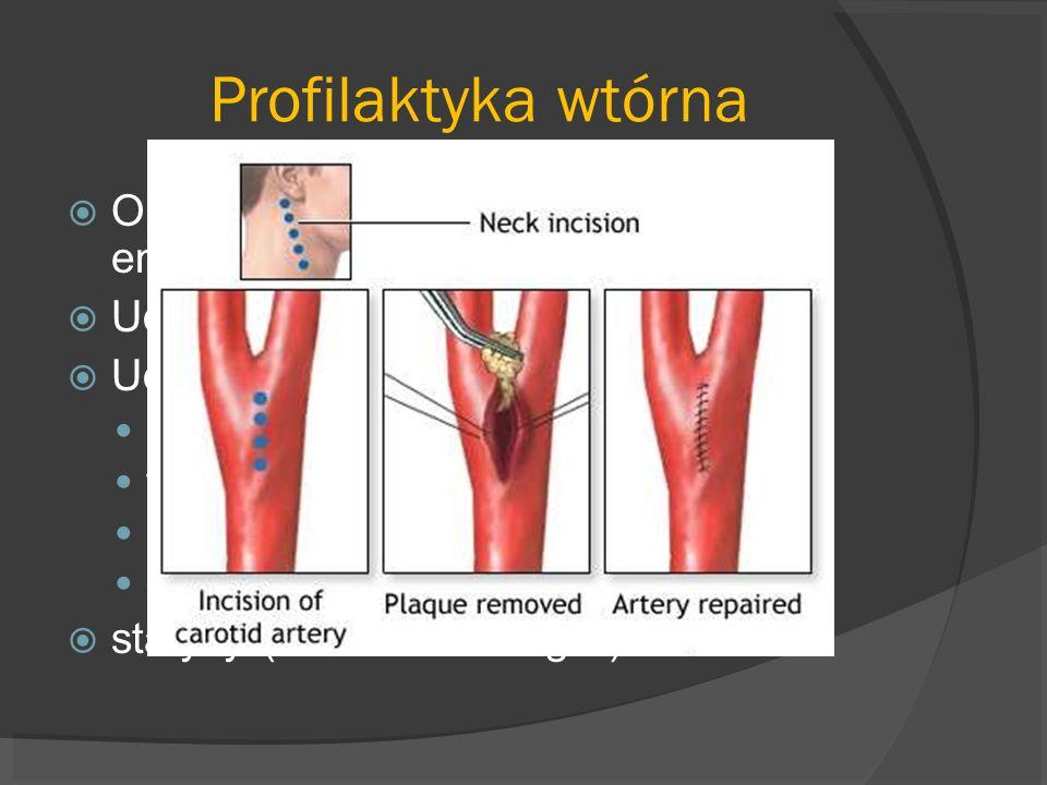 Profilaktyka wtórna Objawowe zwężenie ICA>70%- endarterektomia