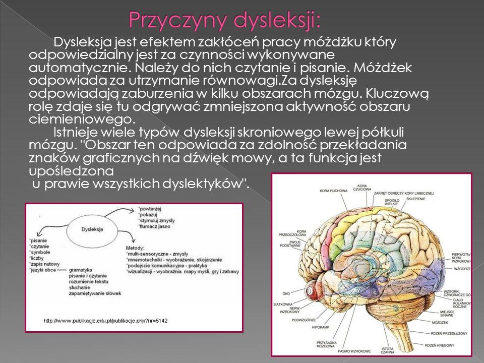 Przyczyny dysleksji: