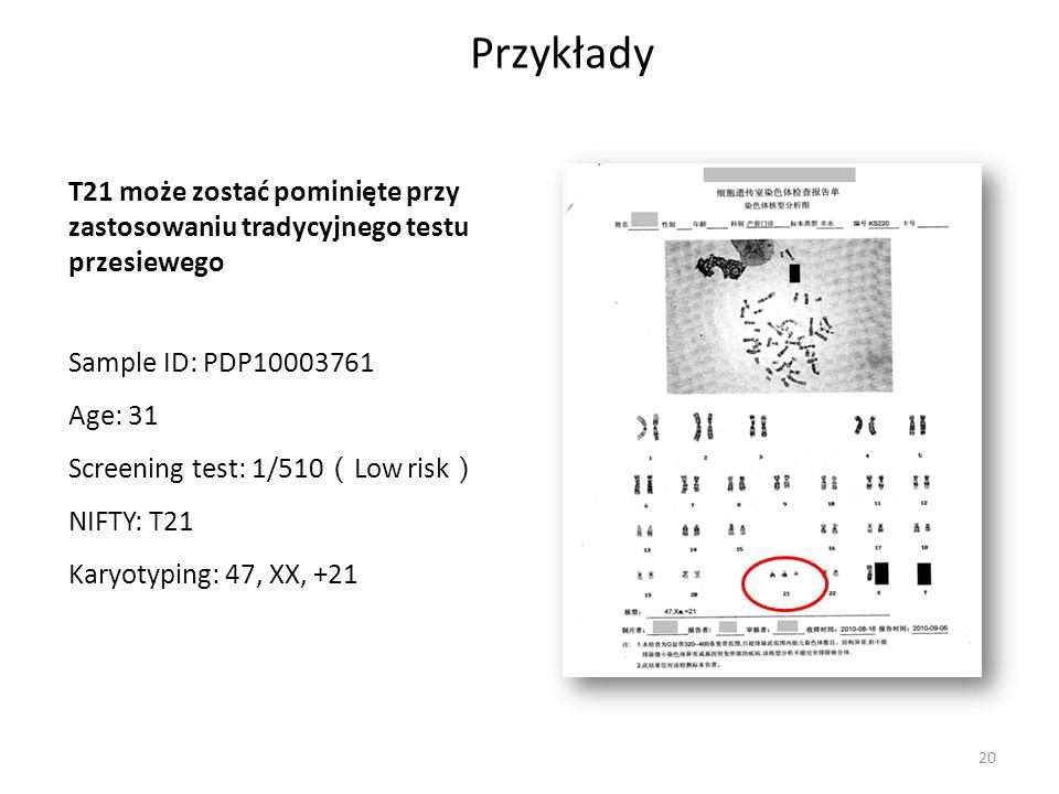 Przykłady T21 może zostać pominięte przy zastosowaniu tradycyjnego testu przesiewego. Sample ID: PDP10003761.
