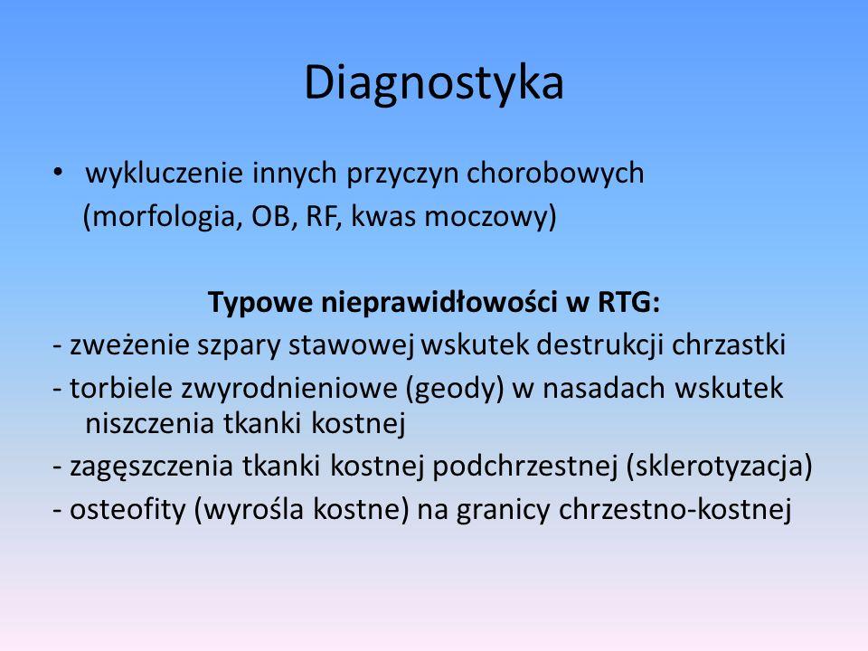 Typowe nieprawidłowości w RTG: