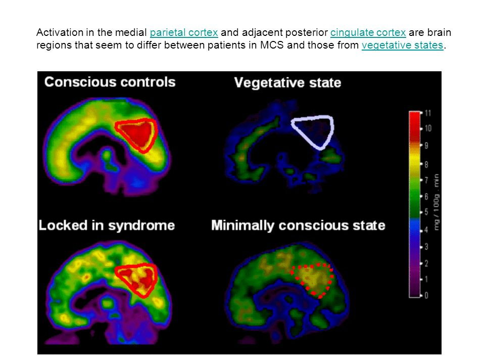 Activation in the medial parietal cortex and adjacent posterior cingulate cortex are brain regions that seem to differ between patients in MCS and those from vegetative states.
