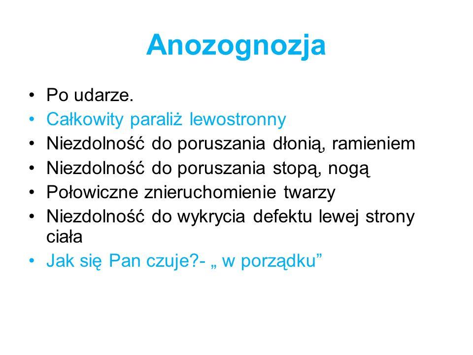 Anozognozja Po udarze. Całkowity paraliż lewostronny