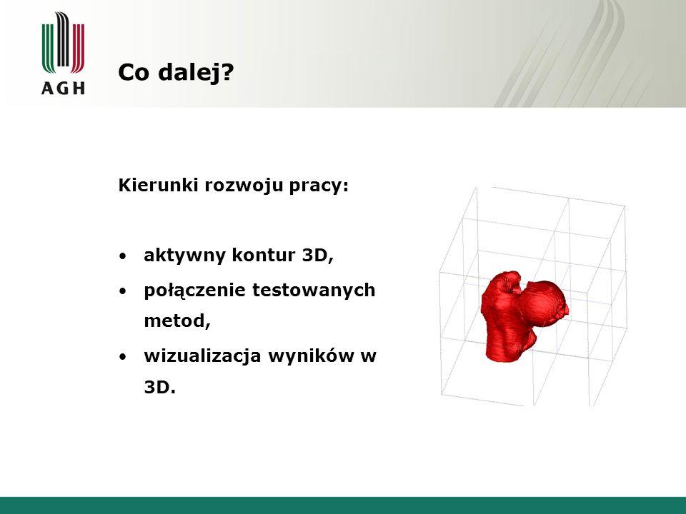 Co dalej Kierunki rozwoju pracy: aktywny kontur 3D,