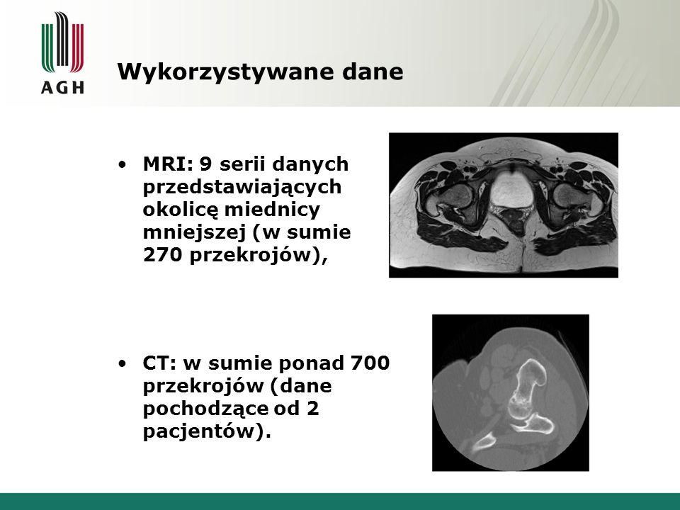 Wykorzystywane dane MRI: 9 serii danych przedstawiających okolicę miednicy mniejszej (w sumie 270 przekrojów),