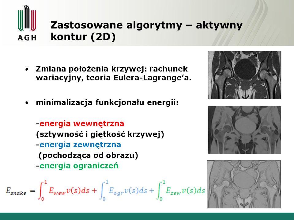 Zastosowane algorytmy – aktywny kontur (2D)