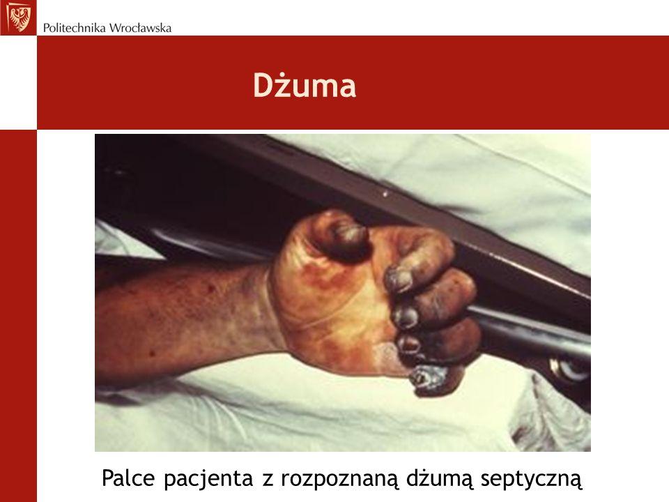 Dżuma Palce pacjenta z rozpoznaną dżumą septyczną