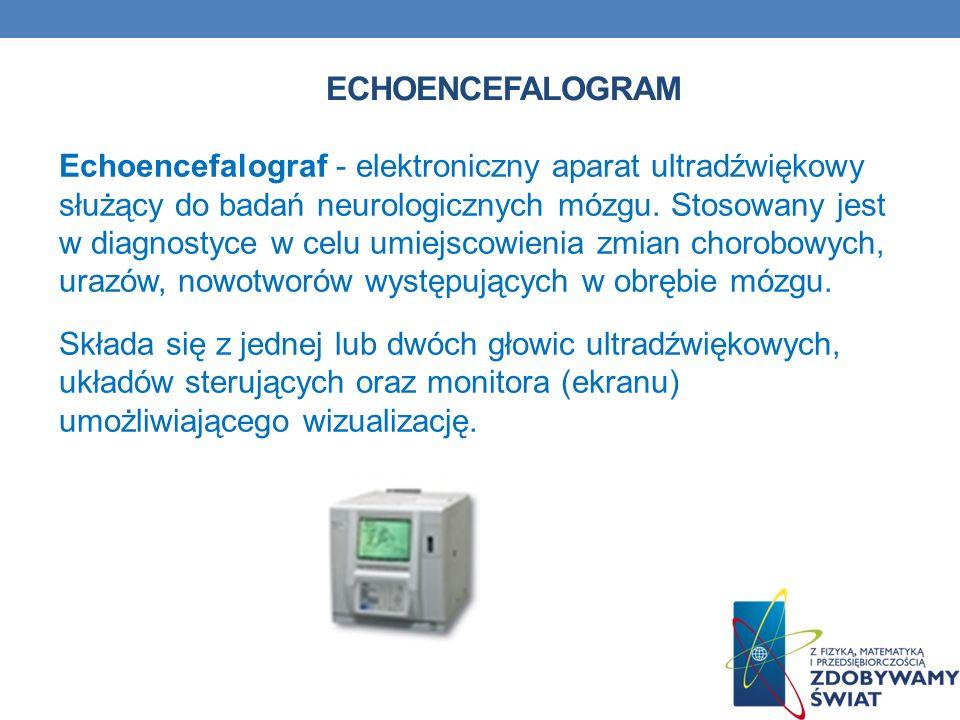 Echoencefalogram