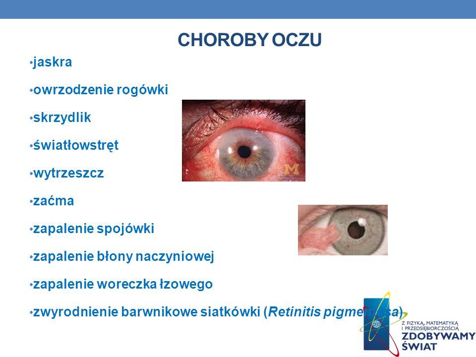 Choroby oczu jaskra owrzodzenie rogówki skrzydlik światłowstręt