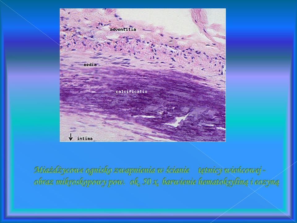 Miażdżycowe ognisko zwapnienia w ścianie tętnicy wieńcowej - obraz mikroskopowy pow.