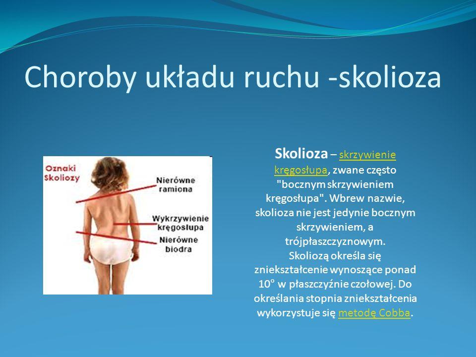 Choroby układu ruchu -skolioza