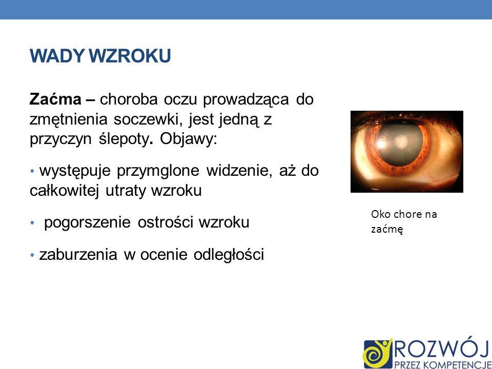 wady wzroku Zaćma – choroba oczu prowadząca do zmętnienia soczewki, jest jedną z przyczyn ślepoty. Objawy: