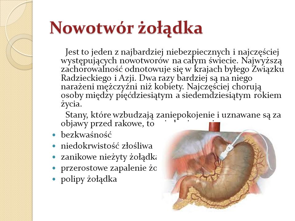 Nowotwór żołądka