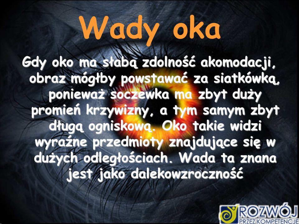 Wady oka