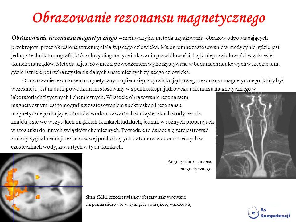 Obrazowanie rezonansu magnetycznego