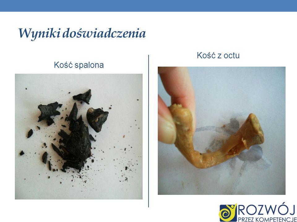 Wyniki doświadczenia Kość z octu Kość spalona