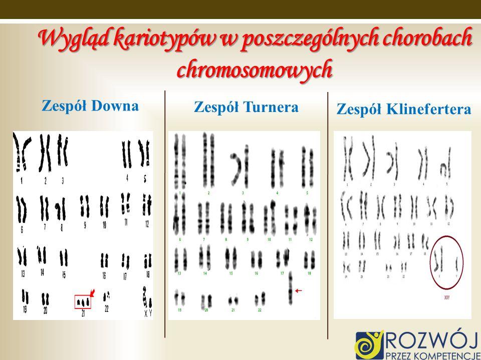 Wygląd kariotypów w poszczególnych chorobach chromosomowych