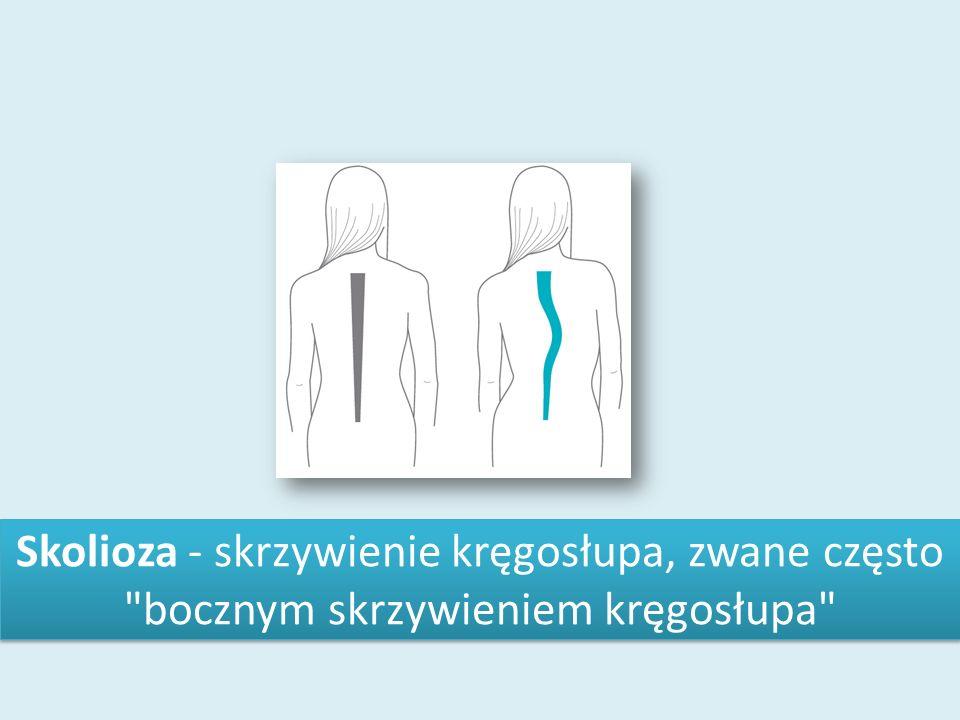 Skolioza - skrzywienie kręgosłupa, zwane często bocznym skrzywieniem kręgosłupa