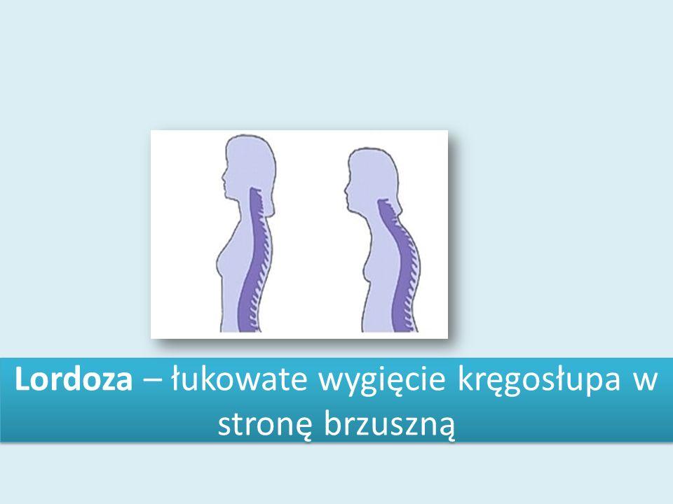 Lordoza – łukowate wygięcie kręgosłupa w stronę brzuszną
