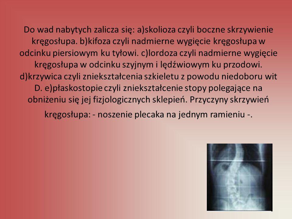 Do wad nabytych zalicza się: a)skolioza czyli boczne skrzywienie kręgosłupa.