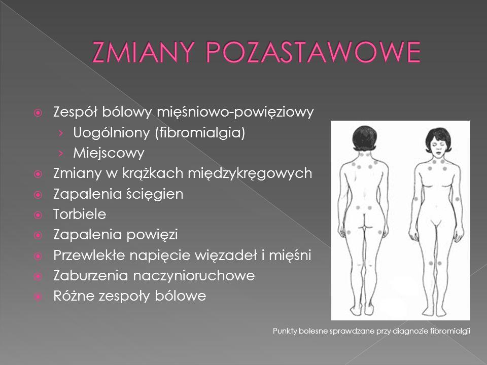ZMIANY POZASTAWOWE Zespół bólowy mięśniowo-powięziowy