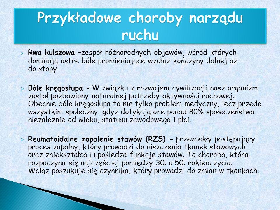 Przykładowe choroby narządu ruchu