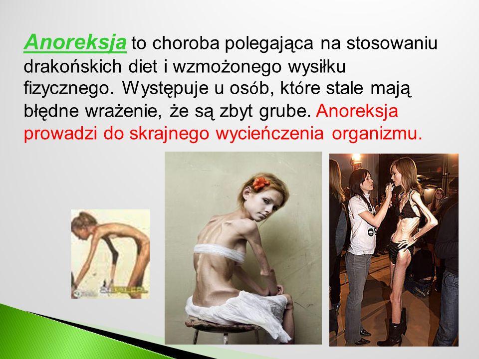 Anoreksja to choroba polegająca na stosowaniu drakońskich diet i wzmożonego wysiłku fizycznego.