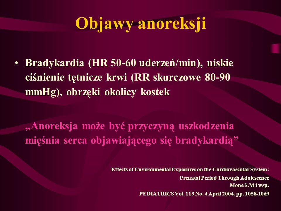 Objawy anoreksji Bradykardia (HR 50-60 uderzeń/min), niskie ciśnienie tętnicze krwi (RR skurczowe 80-90 mmHg), obrzęki okolicy kostek.
