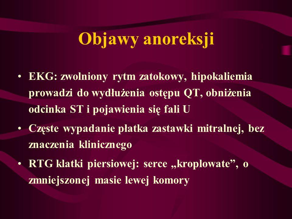 Objawy anoreksji EKG: zwolniony rytm zatokowy, hipokaliemia prowadzi do wydłużenia ostępu QT, obniżenia odcinka ST i pojawienia się fali U.