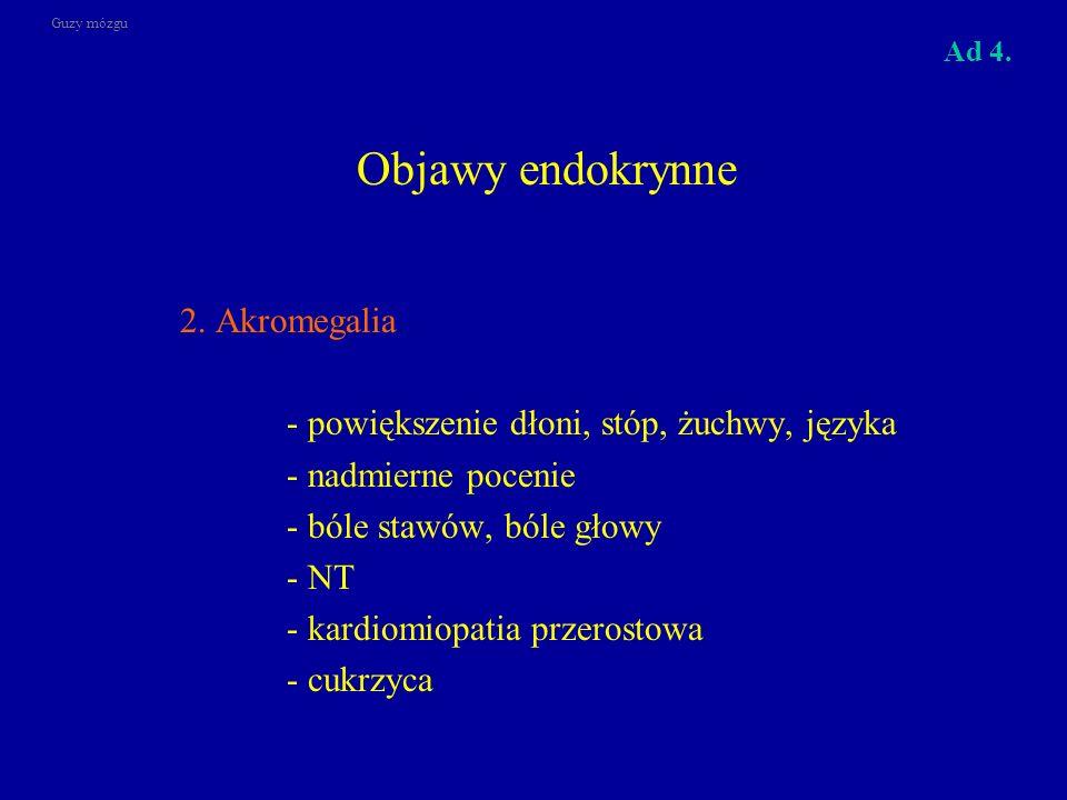 Objawy endokrynne 2. Akromegalia
