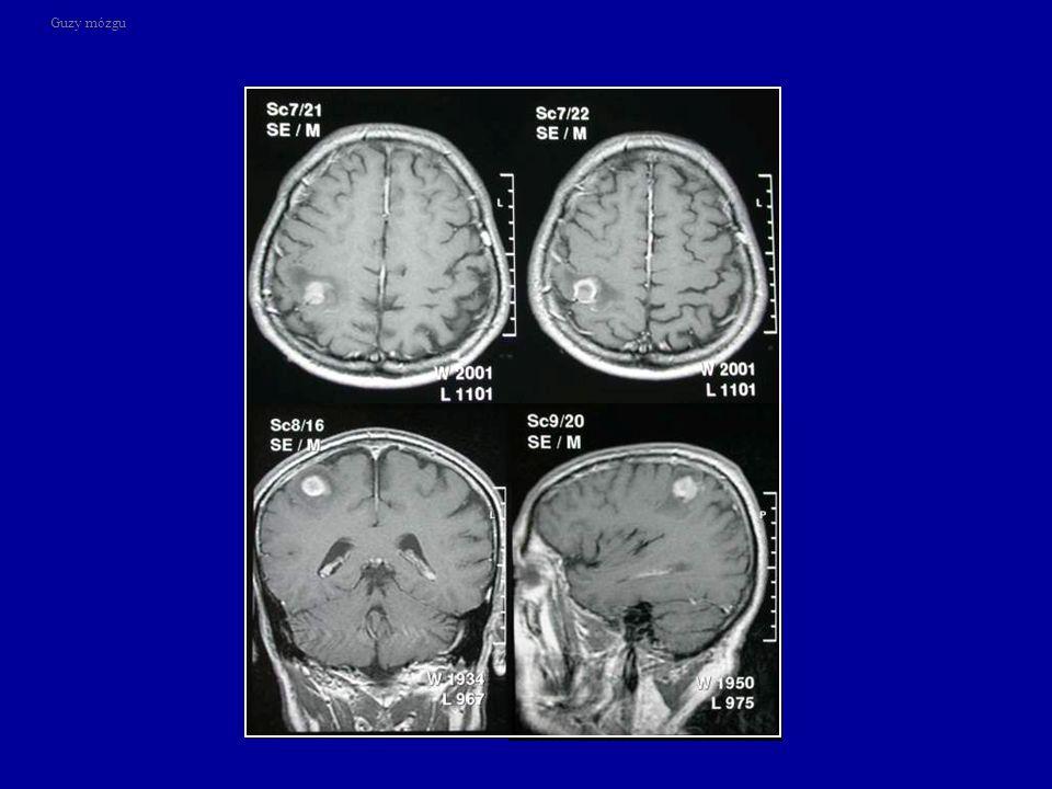 Guzy mózgu