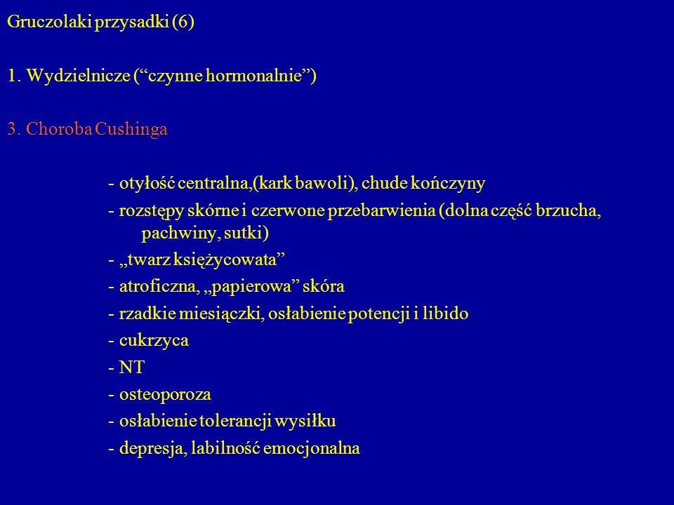 Gruczolaki przysadki (6)