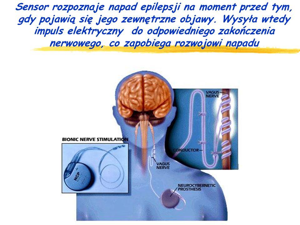 Sensor rozpoznaje napad epilepsji na moment przed tym, gdy pojawią się jego zewnętrzne objawy.