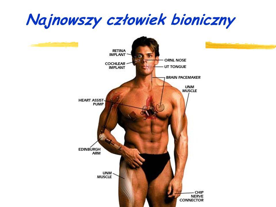 Najnowszy człowiek bioniczny