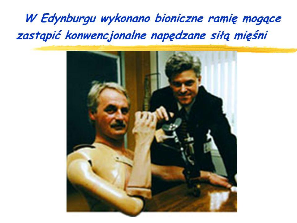 W Edynburgu wykonano bioniczne ramię mogące zastąpić konwencjonalne napędzane siłą mięśni