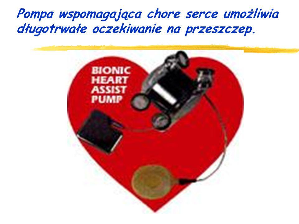 Pompa wspomagająca chore serce umożliwia długotrwałe oczekiwanie na przeszczep.