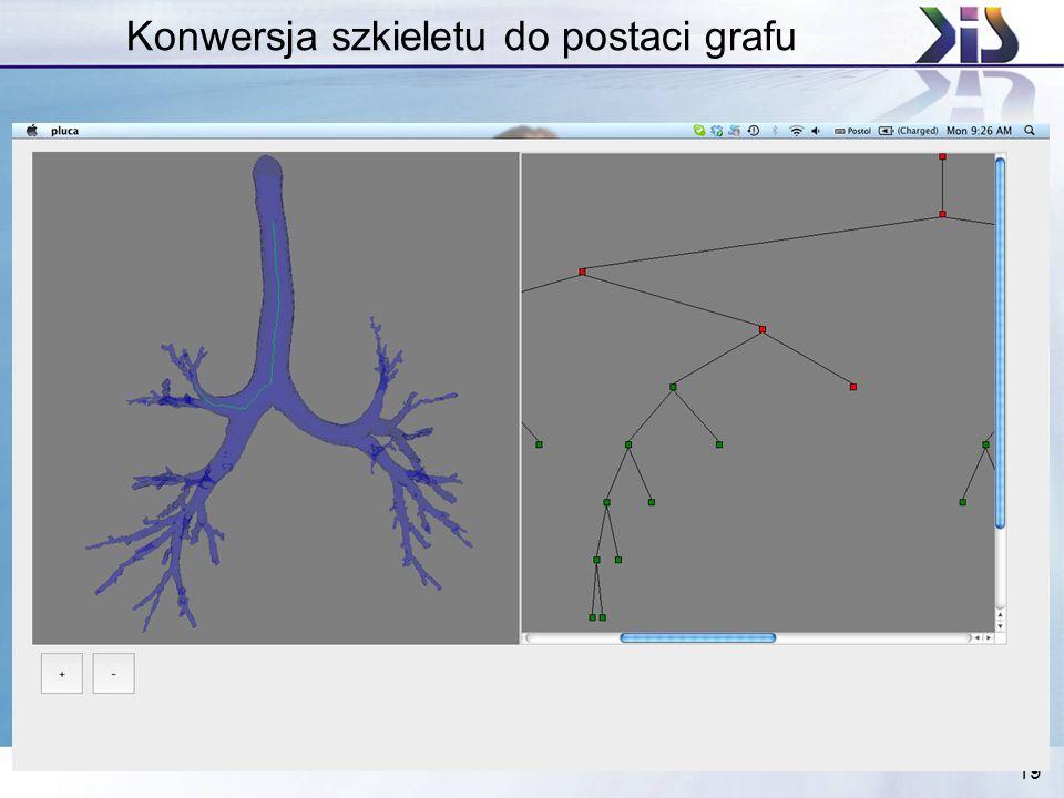 Konwersja szkieletu do postaci grafu
