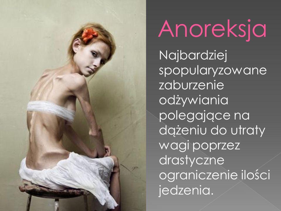 Anoreksja Najbardziej spopularyzowane zaburzenie odżywiania polegające na dążeniu do utraty wagi poprzez drastyczne ograniczenie ilości jedzenia.