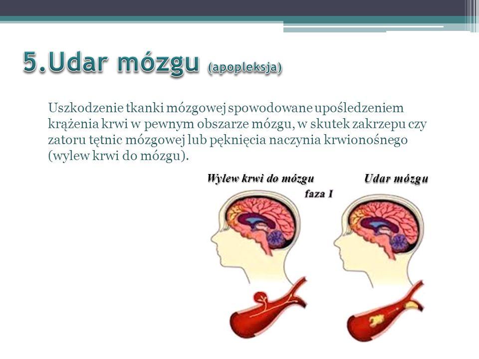 5.Udar mózgu (apopleksja)