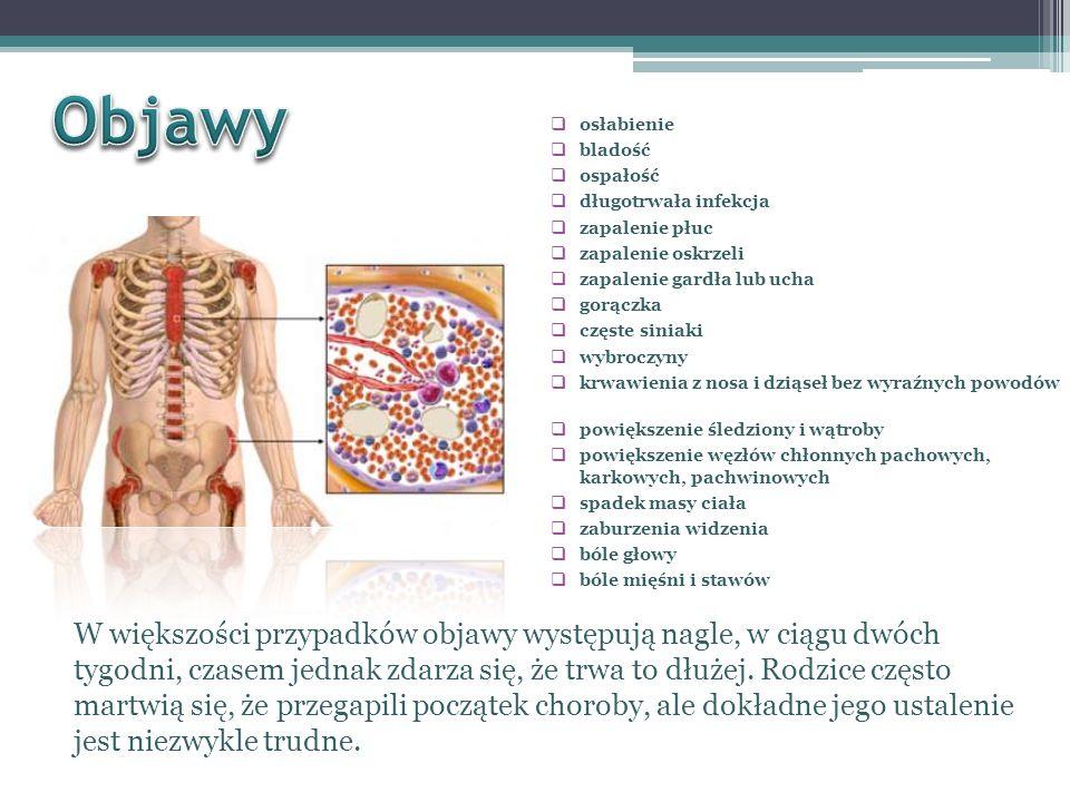 Objawy osłabienie. bladość. ospałość. długotrwała infekcja. zapalenie płuc. zapalenie oskrzeli.