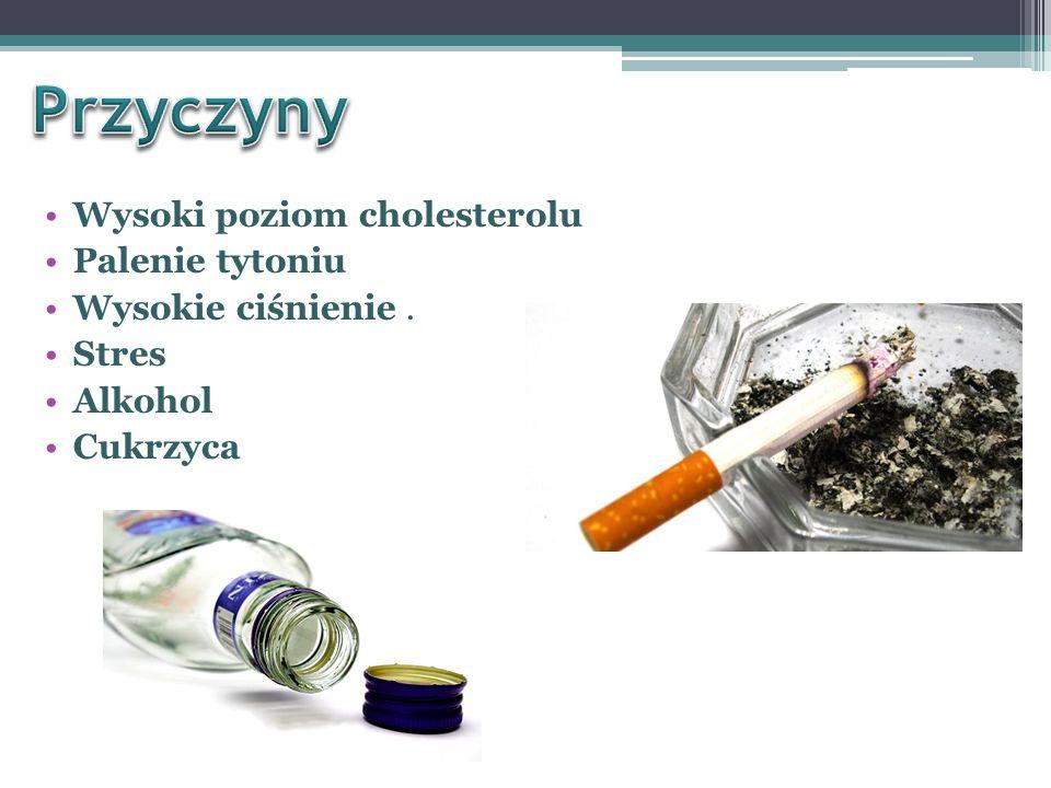 Przyczyny Wysoki poziom cholesterolu Palenie tytoniu